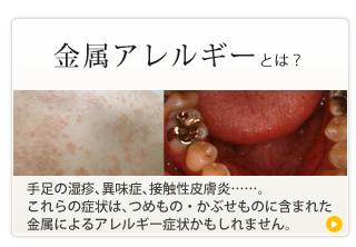 歯科金属アレルギーとは?